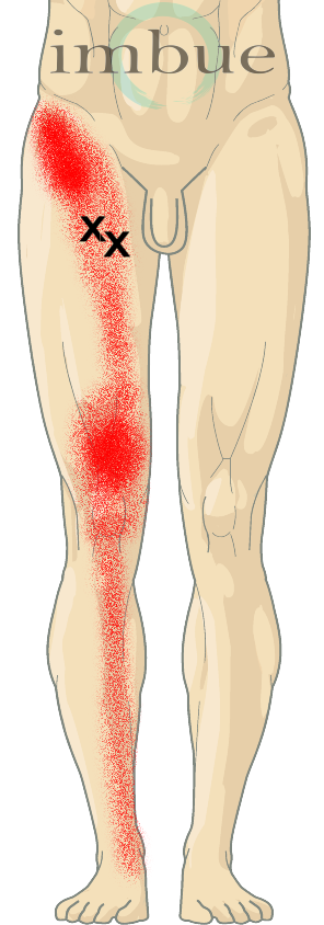 Muscle and Joint Pain of the Groin and Pelvis | Imbue Pain ...