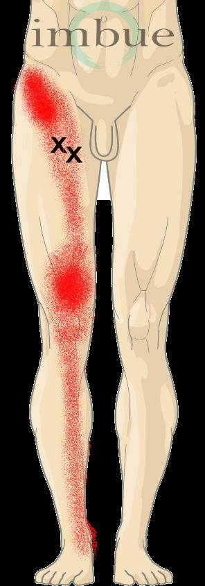 masturbation causes radiating leg pain