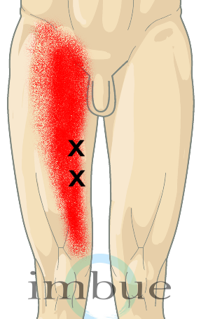 Thigh Pain: Where is it Coming From & What to Do? - Dr