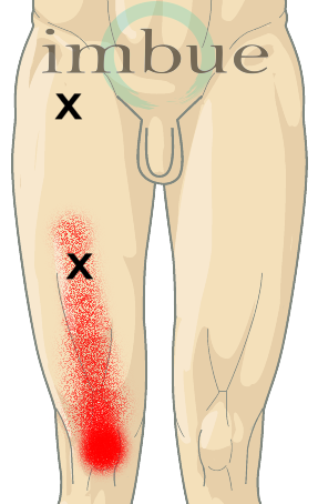 diagram of leg pain diagram of chest pain