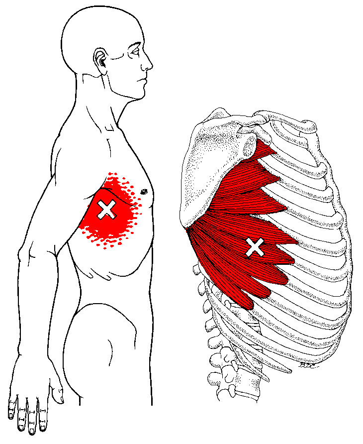 Muscle Pull Below My Right Rib Cage 59