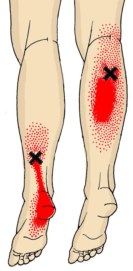Calf Muscle Sprain 111