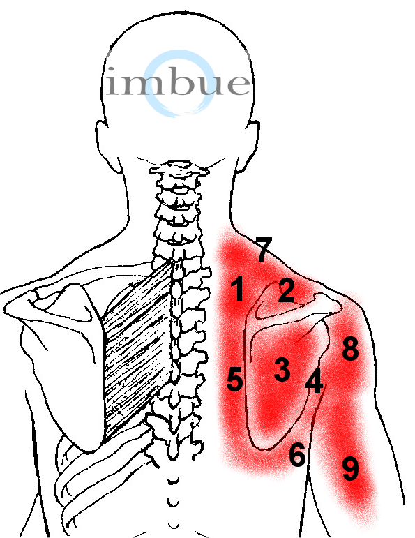 Shoulder injury diagram